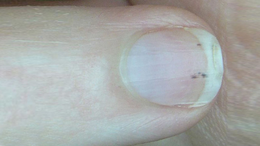 light black line on fingernail - 1024×576