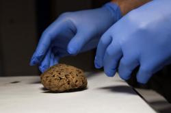 Δεκάδες φυσικά διατηρημένοι εγκέφαλοι ανακαλύφθηκαν σε μαζικό τάφο της εποχής της Ισπανικού Εμφυλίου