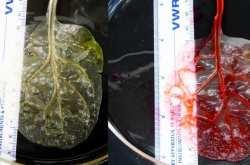 Έφτιαξαν ανθρώπινο ιστό καρδιάς από ένα φύλλο σπανάκι! (ΒΙΝΤΕΟ)