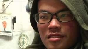 Ήταν 7 εβδομάδες αγνοούμενος στα Ιμαλάια και επέζησε-Βρέθηκε καλυμμένος με σκουλήκια (ΒΙΝΤΕΟ)